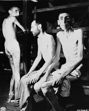 Those who survived Buchenwald were emaciated, as the camp literally worked its captives to death. Many died of tuberculosis, starvation and fatigue.